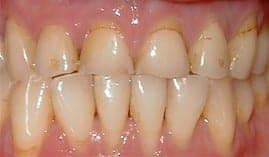 BCOH Porcelain-Crowns-Before