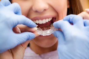BCOH_Am_I_a_Candidate_for_Invisalign