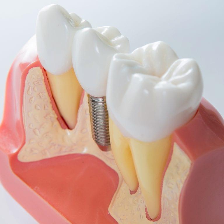 ECM_BCOH_Dental_implant