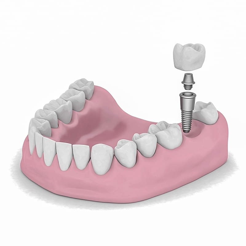 ECM_BCOH__dental-implant_2.jpg